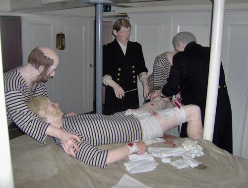 Amputation på Fregatten Jylland