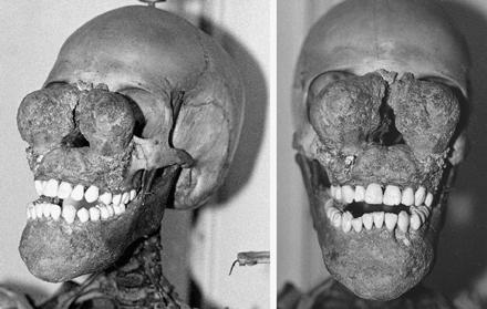 Bilateral goundou on a skeleton of an adolescent