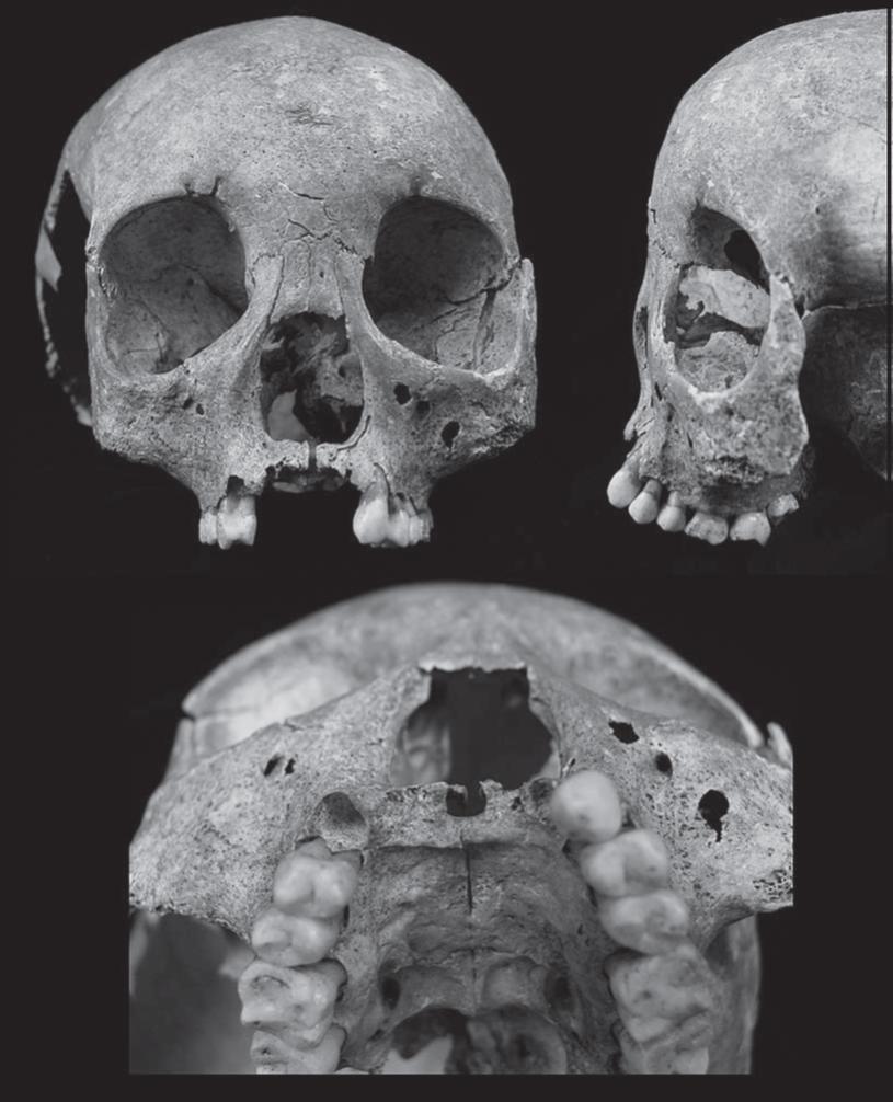 Палеопатология фото
