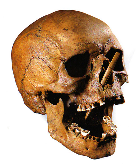 The skull of the Porsmose Man