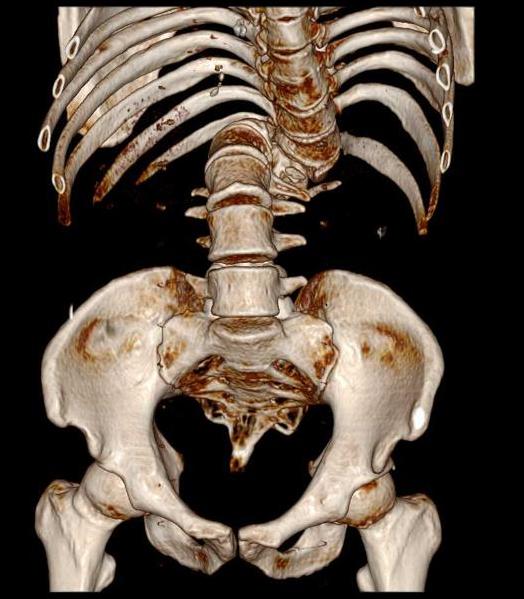 Severe rotoscoliosis with gibbus deformity