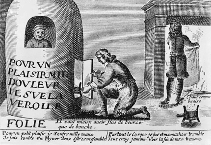 Illustration of a Syphilitic Man in Fumigation Stove
