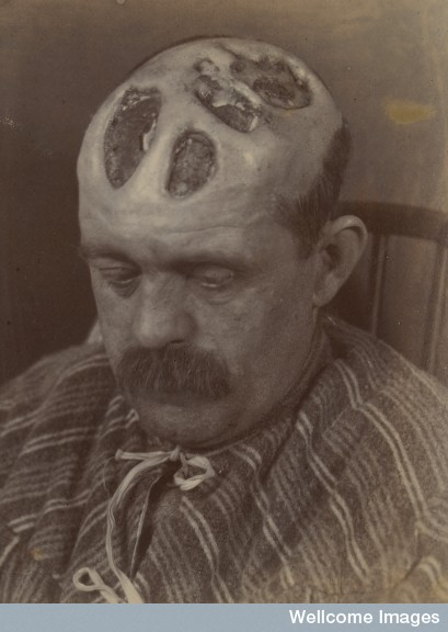 Tertiary syphilitic ulceration of the scalp
