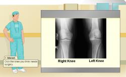 Hvilket knæ?