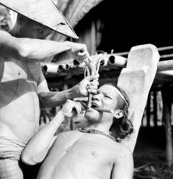 A man having his teeth chiseled, Mentawai Islands 1938