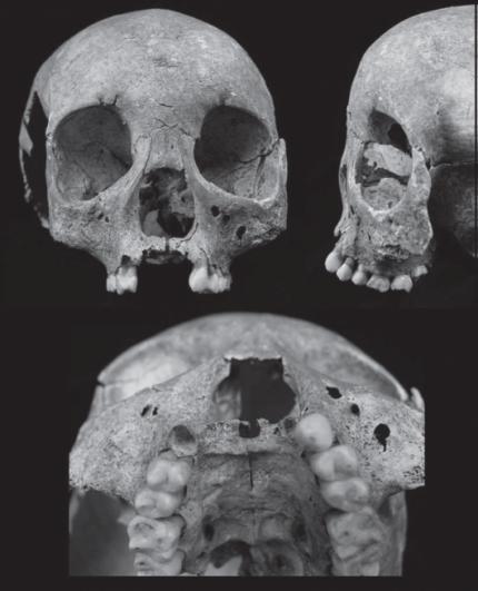 Leprogenic odontodysplasia